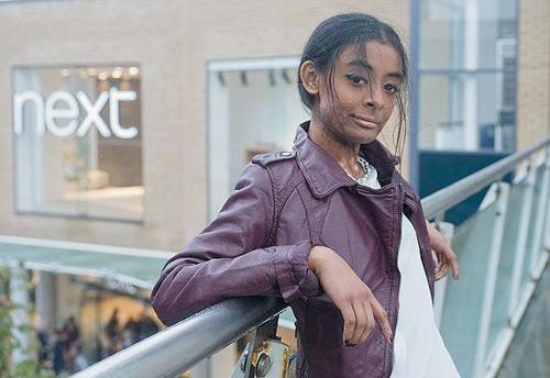 ลาบอนญ่า ซิดดีควิส นางแบบผู้กล้า ของเน็กซ์