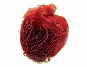 ภาพหัวใจมนุษย์